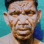 Image of man with leprocsy from Darcy Island